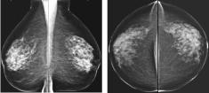 mammodigitale-sein-dense
